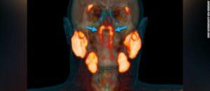 new organ found in human throat